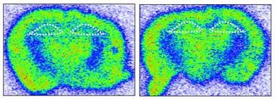Cell-PTSD-image